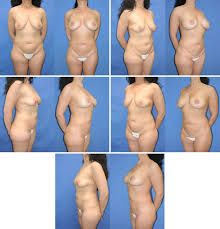 Image result for breast fat graft before and after