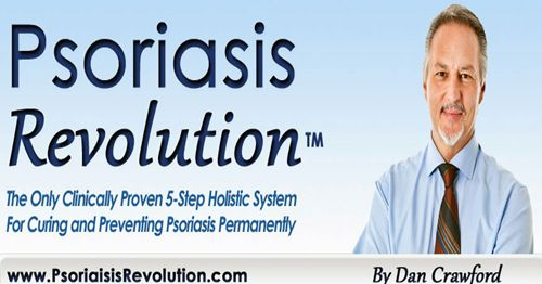 http://ift.tt/2pAfxaO ==>Psoriasis Revolution  || 1 Weird Trick That Forces Your Body to Heal PsoriasisPsoriasis Revolution : http://ift.tt/2nLp2aZ  Psoriasis is a dangerous skin disease that highly contagious. If you are looking for a permanent cure Here is the program which helps you to recover from Psoriasis forever.Psoriasis Revolution is a holistic system that guides you on how to permanently treat the disease in a span of about 30 to 60 days while at the same time helping to regain the…