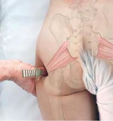 Piriformis release - for that pain in the ass. Basic Clinical Massage Therapy