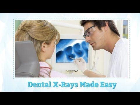 Dental X rays Everything You Need to Know About simplysmilesdental.com.au