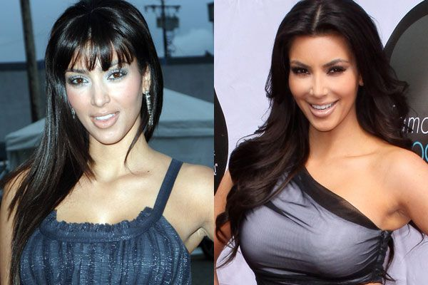 More before and after pics from Kim K...See her plastic surgery videos here... http://www.celebrityplasticsurgery24.com/kim-kardashian-plastic-surgery/