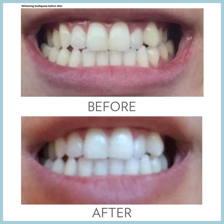 check out the link for whitening toothpaste