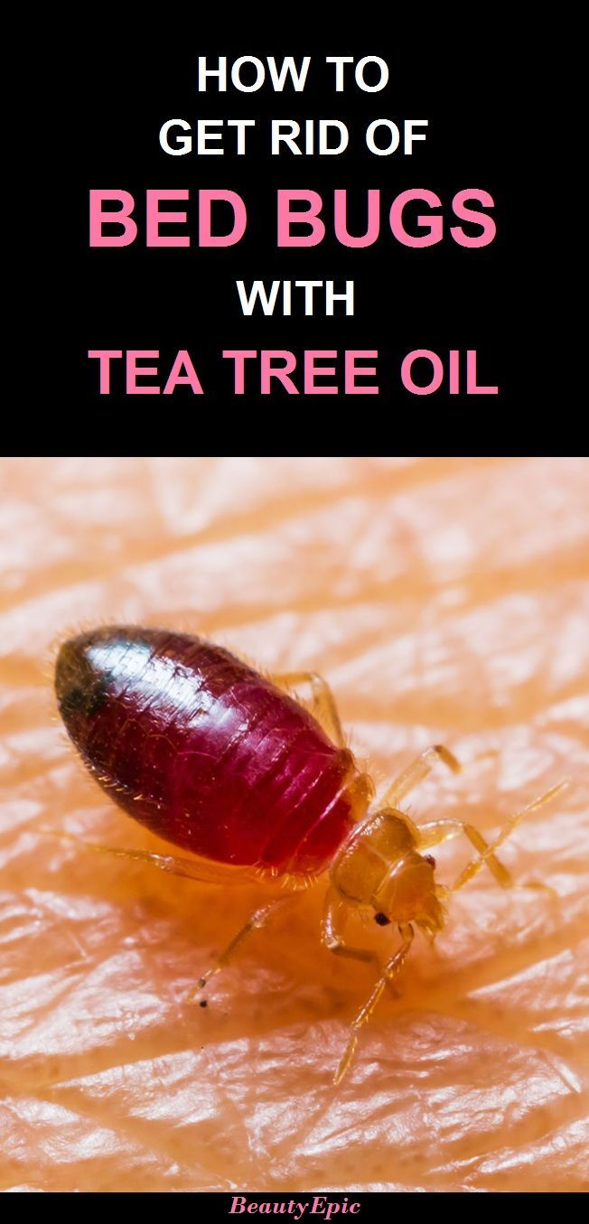 How To Get Rid Of Bed Bugs With Tea Tree Oil Teatreeoiluses Tea