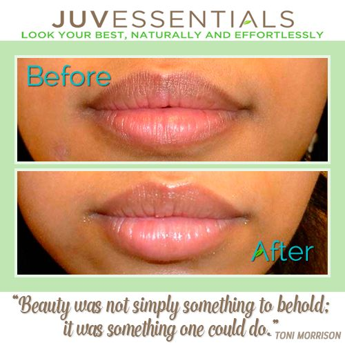 168 best before and after permanent makeup images on for Can you tattoo your lips