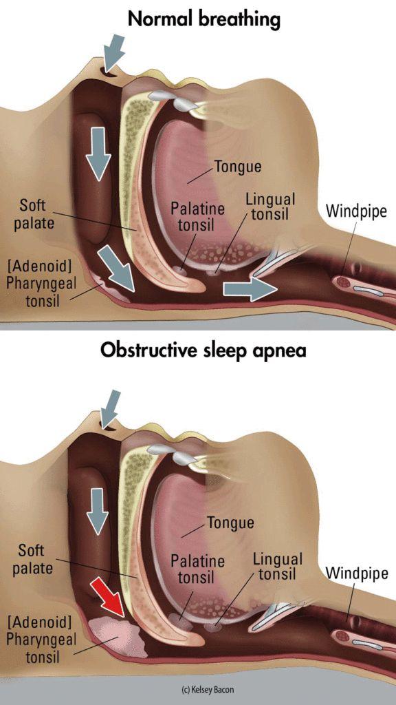 A diagram showing the cause of sleep apnea. #Sleepapnearemedies