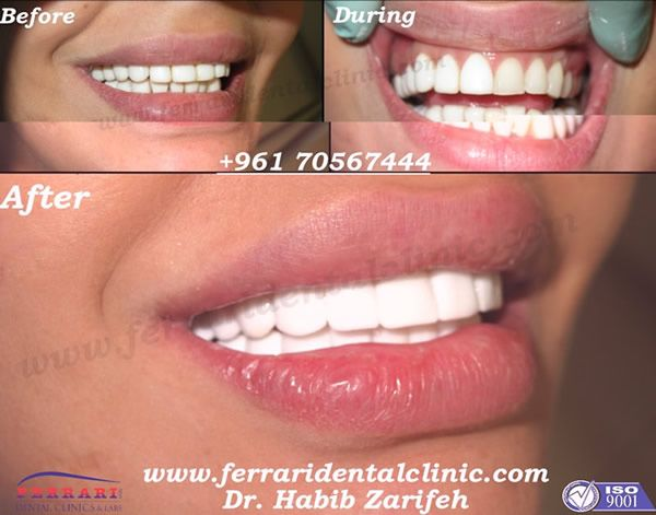perfect smile veneers видео на русском