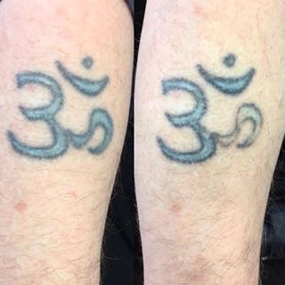 PicoSure Tattoo Removal at LaserYou, Burnham SL1 7HX . Showing results from a patch test on the right part of the tattoo.