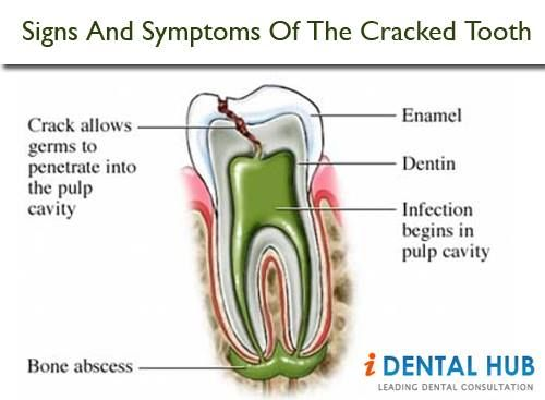 Do you have a cracked tooth? A cracked tooth can become a bigger problem if left untreated. If you think you may have a cracked tooth, visit your dentist.