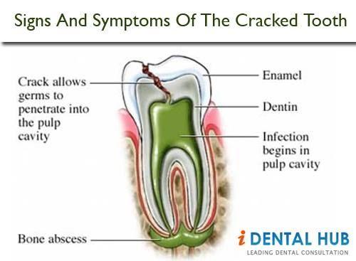 trip to dentist essay