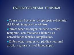Resultado de imagen para epilepsia causas