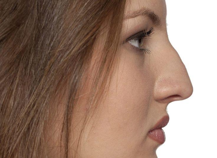 naso greco trucco