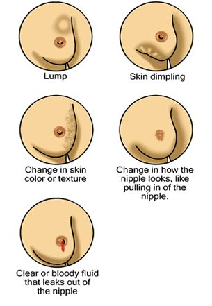 Guide for Women Breast Cancer Survivors:1
