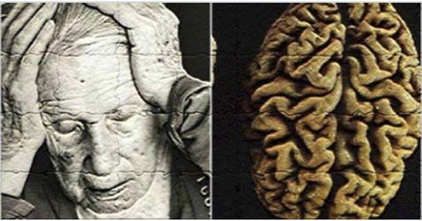La enfermedad de Alzheimer es una enfermedad degenerativa que causa un deterioro progresivo de la función cognitiva y la memoria. Poco a poco, la destrucción de las células nerviosas se produce en las regiones cerebrales relacionadas con la memoria y el lenguaje. Con el tiempo, es cada vez más difícil para la persona recordar eventos, reconocer objetos y caras, recordar el significado de las palabras y ejercitar el juicio. En general, los síntomas aparecen después de los 65 años y la…