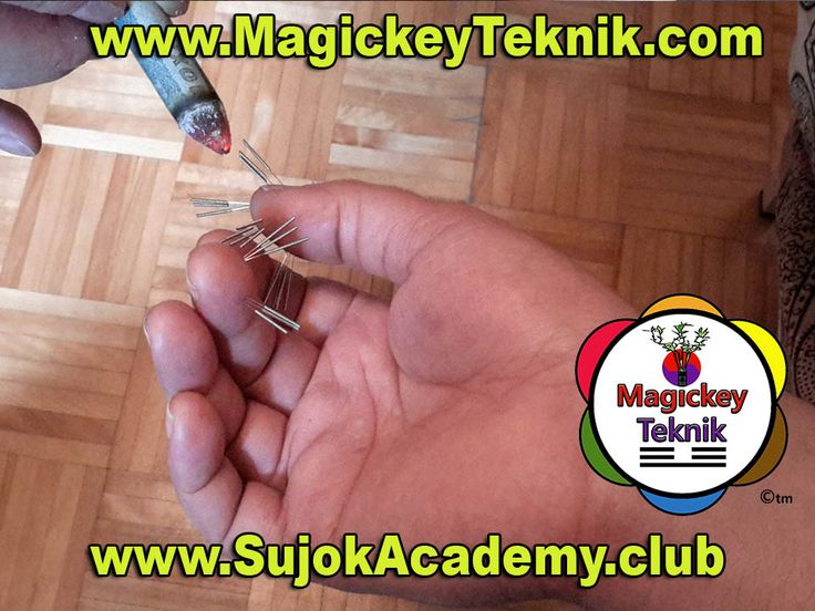 The Magickey® technique and the SUJOK are really simple. Simply install the needles on the connecting points, where the energy circulation is blocked. Then with the help of moxa you can then heat the needles lightly and leave to rest for 30 - 60 minutes. Then you remove the needles and there you will set the meridians or meridians did not circulate.Ensuite vous retirez les aiguilles  et là vous aurez régler la ou les méridiens ne circulait pas.