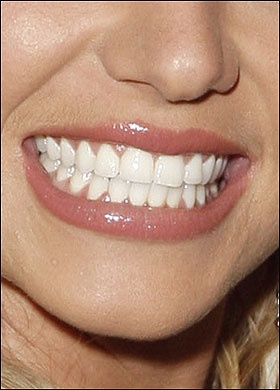 Fix my teeth so they look more like Britney Spears'!
