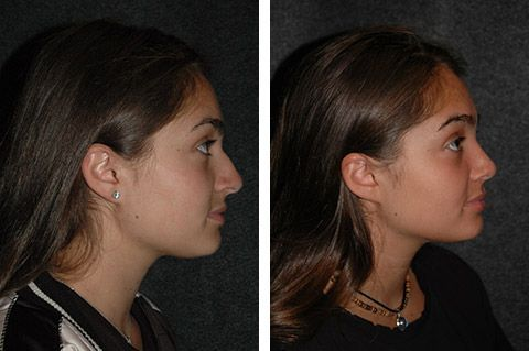 Beverly Hills Rhinoplasty Specialist Dr. Donald Yoo performed a revision rhinoplasty with ear cartilage on a female patient. This before and after picture was taken at 1 month post surgery