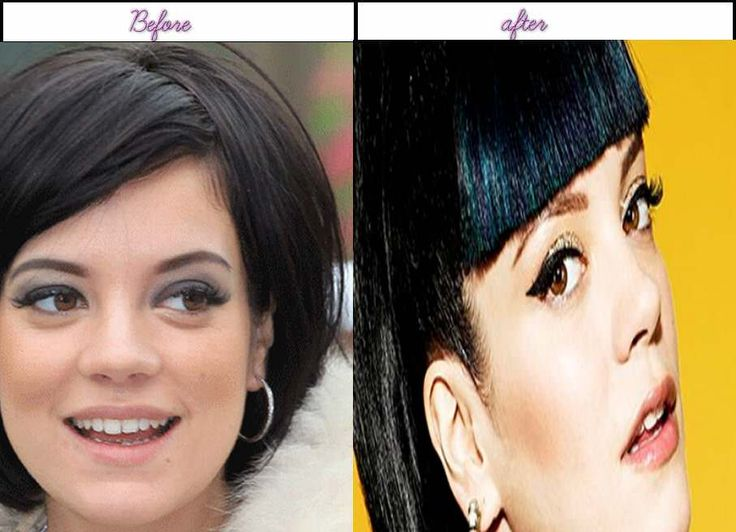 Photos Of  Lily Allen Looks Immediately After Plastic Surgery 2014 - http://www.aftersurgeryjob.com/photos-allen-looks-immediately-plastic-surgery-2014/