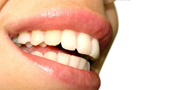 Fresh Breath Day is #today! Celebrate with a #smile http://www.LevineDental.com