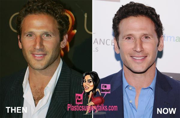 Mark Feuerstein Plastic Surgery Before & After - http://www.plasticsurgerytalks.com/mark-feuerstein-plastic-surgery-before-after/
