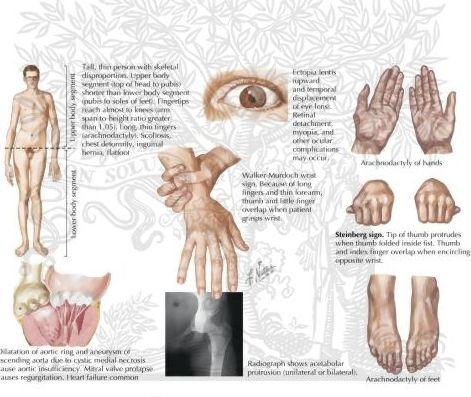 Resultado de imagen de sindrome de marfan caracteristicas