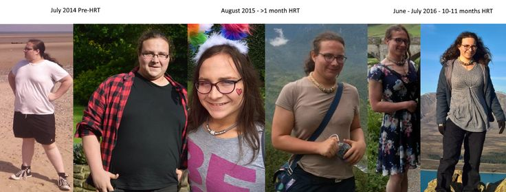 22 MTF, Before and a year after HRT