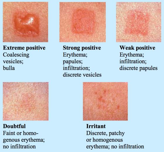 What does a tb skin test look like