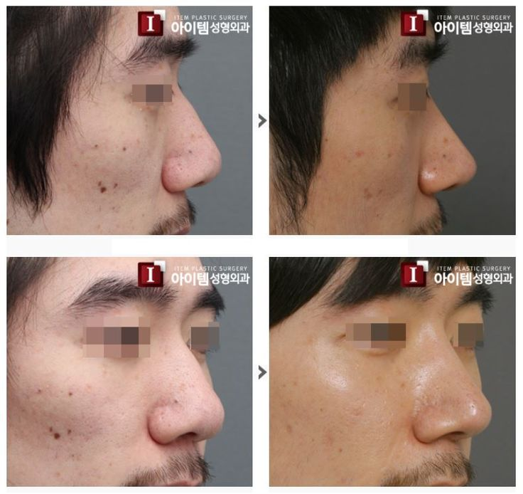 [Nose surgery - Men's Rhinoplasty] plastic surgery in korea, cosmetic surgery in korea, asian plastic surgery, nose surgery, rhinoplasty, nose job, beauty, before and after