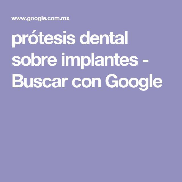 prótesis dental sobre implantes - Buscar con Google