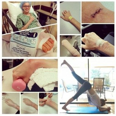 Exercising after wrist surgery to remove a ganglion cyst.  Yoga modifications.  #yoga, #wristsurgery, #modifications, #cyst, #ganglioncyst