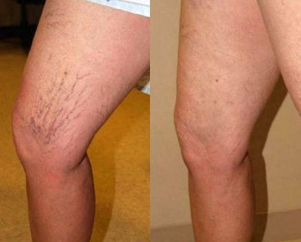 este posibilă abur cu picioarele varicoase înfășurarea la rece în varicoză