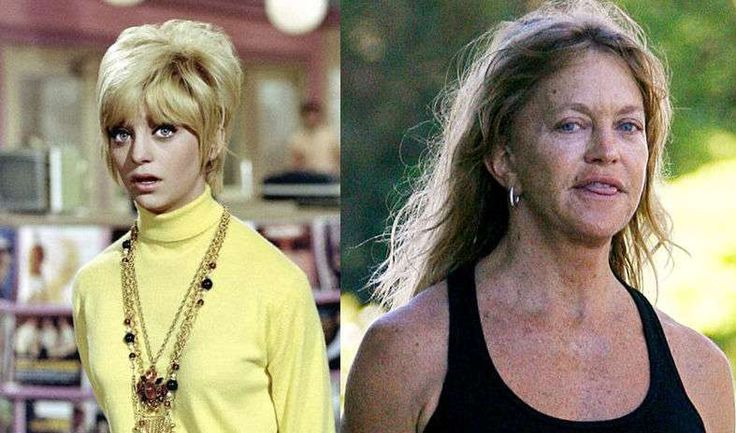 Goldie Hawn /Celebrities Who Have Aged the Worst | List of Celebs Aging Badly (Page 10)