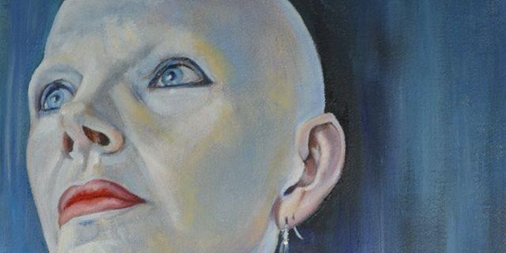"""Sue Hampton author & Ambassador for #Alopecia UK, will share her story """"How Alopecia became a gift"""" https://www.eventbrite.co.uk/e/how-alopecia-became-a-gift-tickets-34694218341?utm-medium=discovery&utm-campaign=social&utm-content=attendeeshare&aff=estw&utm-source=tw&utm-term=listing&utm_content=bufferdf901&utm_medium=social&utm_source=pinterest.com&utm_campaign=buffer Eventbrite UK"""