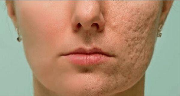 Dieses Mittel lässt jede Narbe, Fältchen und Flecken auf Ihrer Haut in wenigen Minuten verschwinden