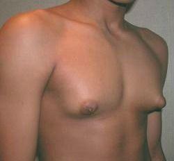 Banish Gynecomastia (Man Boobs) with No Drugs or Surgery