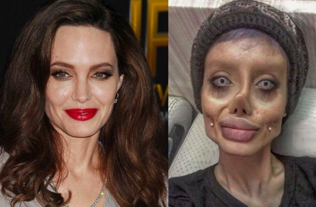 Woman claims she underwent 50 plastic surgeries to look like Angelina Jolie