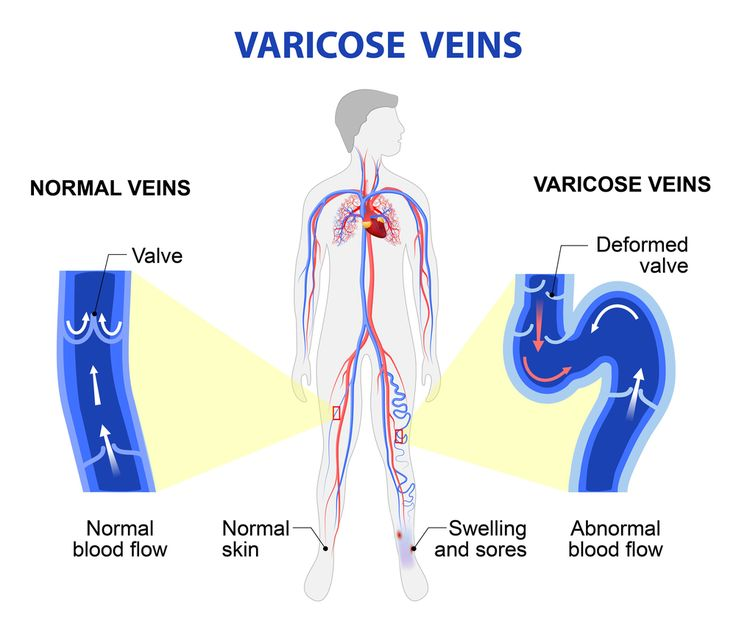 14 Home Remedies to Get Rid of Varicose Veins   Symptoms and Causes