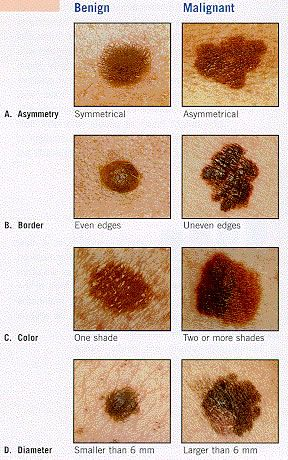 Sun Safe Kids  A- Asymmetry, One half unlike the other half .    B- Border Irregular, scalloped or poorly defined border.     C-Color, Varied from one area to another: shades of tan and brown , black: sometimes white, red or blue.     D- Diameter, While melanomas are usually greater than 6mm in diameter(the size of an eraser) when diagnosed, they can be smaller.  If you notice a mole that is different from others, or which changes, itches or bleeds (even if it is small) you should see a…