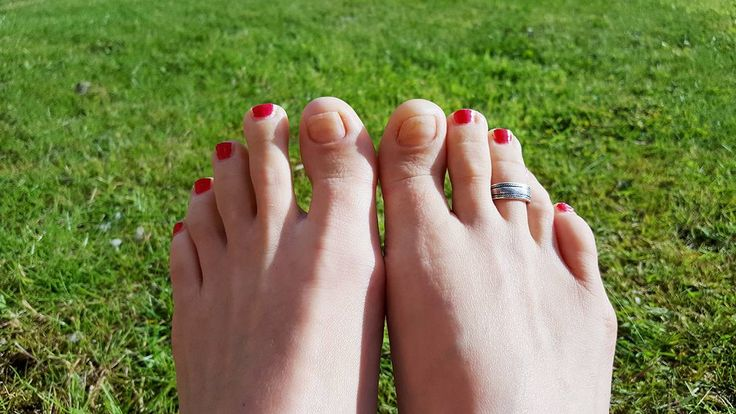 4 months after the treatment from Newcastle Foot Clinic. Nice healthy nails!