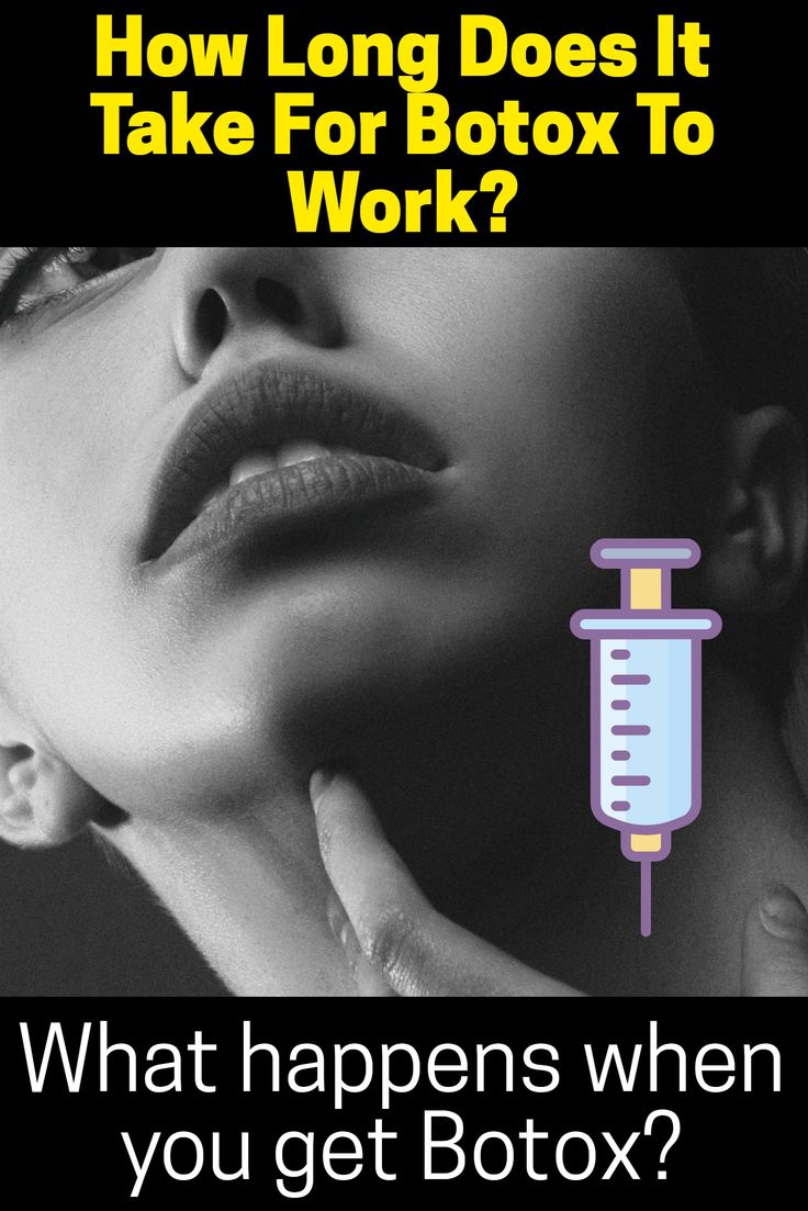How Long Does It Take For Botox To Work? (DOES IT LAST ...