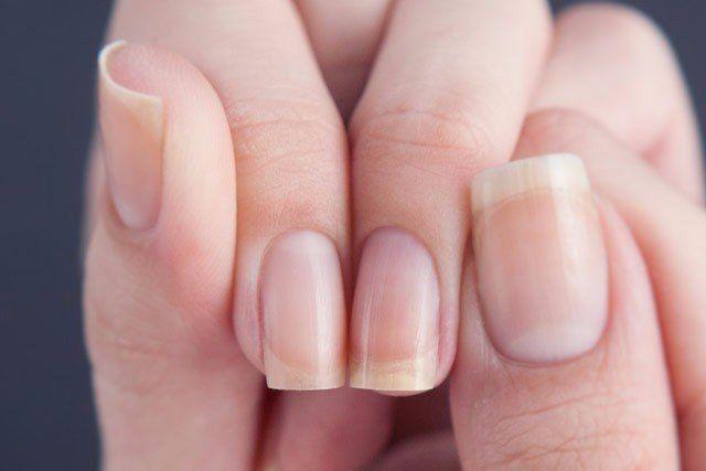 Не забудь сохранить себе, чтобы не потерять. Чтобы ногти не слоились и не ломались, надо купить в аптеке витамин Е и витамин А в капсулах. Упаковки по 50 штук. Не покупать «два в одном», а именно от…