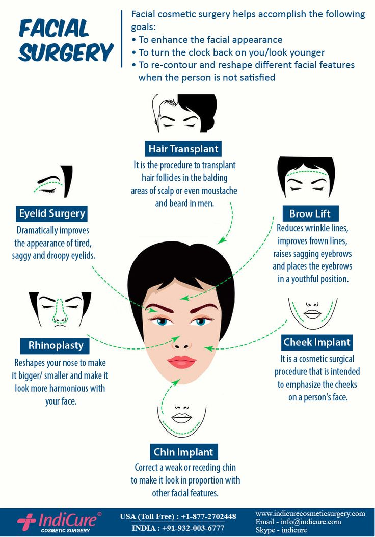 Face plastic surgery in India rejuvenates your face and enhances your features. Procedures like Facelift, neck lift reverse the signs of ageing and turn the clock back on you while Rhinoplasty and chin augmentation make your nose and chin look more harmonious to your face. #plasticsurgery #cosmeticsurgery
