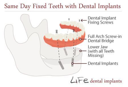 Same Day Dental Implants > Dentures Alternatives > Teeth #same #day #dental #implants,fixed #teeth,same #day #dentures,same #day #implants,dentist #in #london,dentistry #london,teeth,tooth,dentists,clinic,clinics,treatment,treatments,cheapest,specialist,surgery,victoria,warwick #way,westminster,uk…