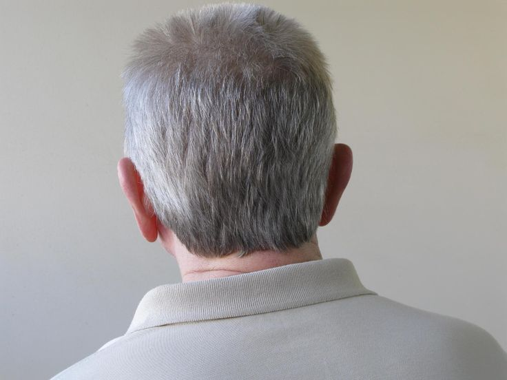 Scientists have been left mystified after an unexpected side effect from a new cancer drug caused patient's grey hair to turn dark. While conventional cancer treatments such as chemotherapy are known to make patients' hair fall out, the new immunotherapy drugs that were being tested in this case work differently and, as such, have different side effects.  One of which the Spanish study suggests could be the restoration of hair pigment, at least in patients with lung cancer.