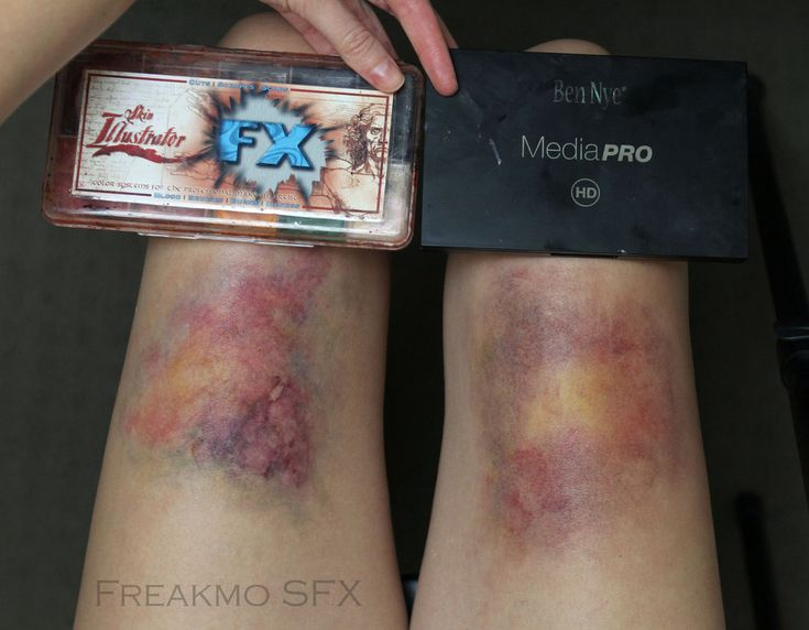 Playing with Bruise Makeup by Freakmo-SFX