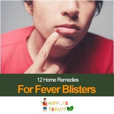 12-home-remedies-for-fever-blisters-you-need-to-know