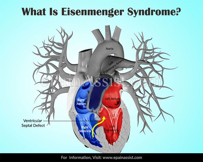What Is Eisenmenger Syndrome?