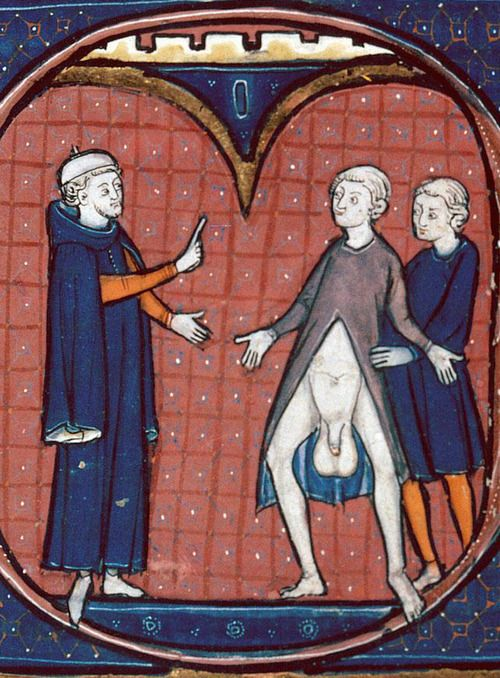 Besançon, Bibliothèque municipale, ms. 0457, f. 273v. Avicenna, Canon medicinae. Paris, 3rd quarter of the 13th century. Nice hernia!