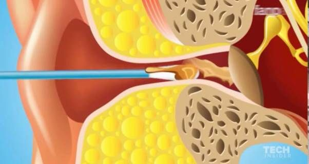 Come togliere il tappo di cerume e pulire le orecchie naturalmente
