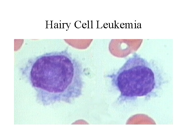 Hairy cell leukemia cancer
