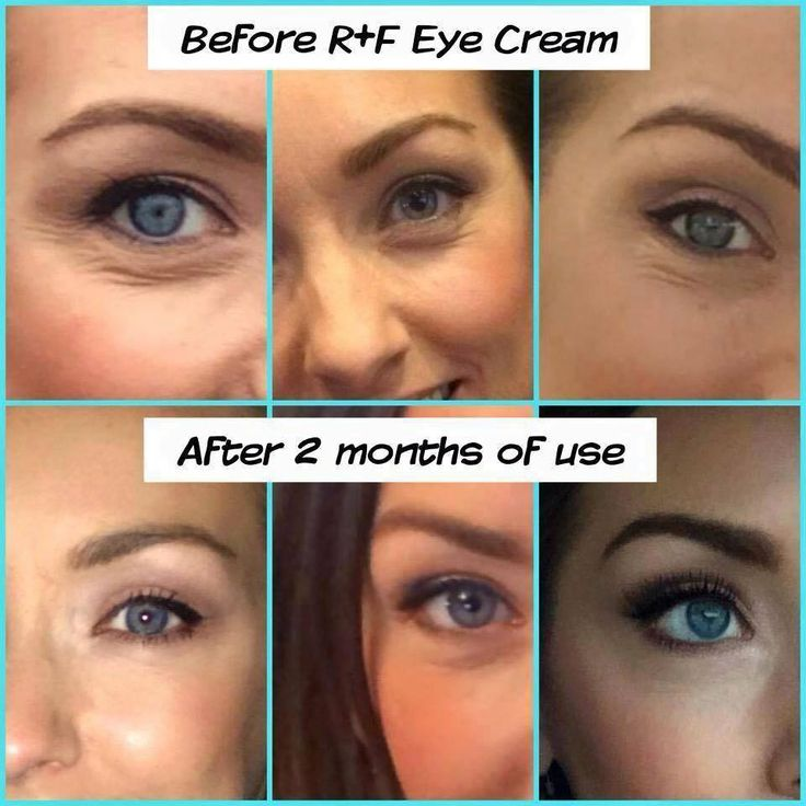 "My ""can't live without it"" product: Redefine Multi Function Eye Cream!"
